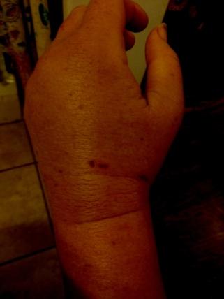 swollen_wrist